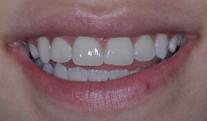 Whiter teeth after professional bleaching