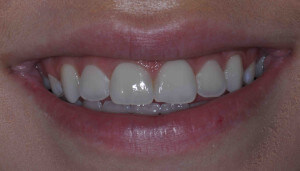 Teeth before professional bleaching
