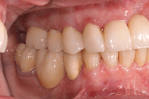 Photo of teeth with no black lines around crown