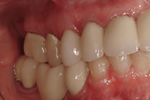 Photo of teeth with black lines around crowns