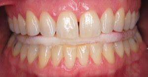Custom TMJ Mouthguard