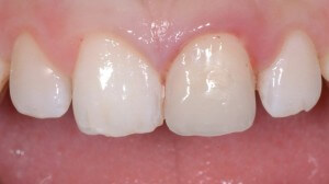Photo of front teeth with beautiful, natural look after dental bonding