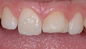 Photo of front teeth with unattractive, uneven edges