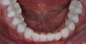 Beautiful lower teeth after full mouth restoration