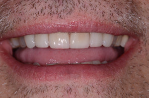 Photo of beautiful front teeth after porcelain veneers