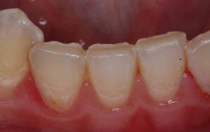 Bottom front teeth showing tooth wear on the edges