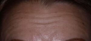 Dynamic Forehead Wrinkles