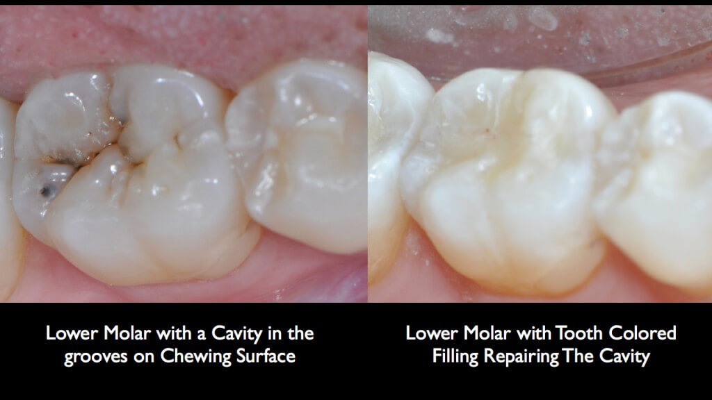 Tooth Colored Fillings.001