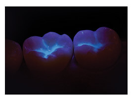 Dental Sealants Glowing Blue Under Fluorescent Light