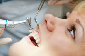 Dental hygienist polishing teeth