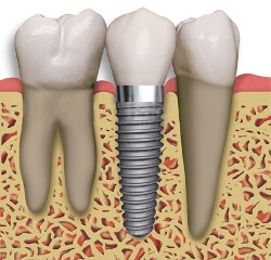 Dental implant replacing a missing tooth